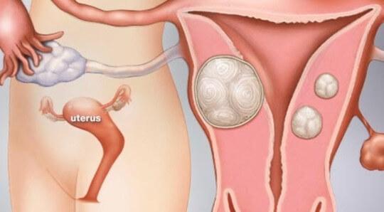 Nguyên nhân gây u xơ tử cung là gì?